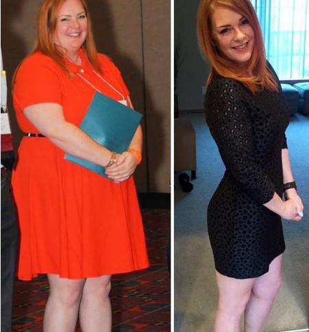Девушка весила 115 кг, похудела до 80 кг, а потом решила