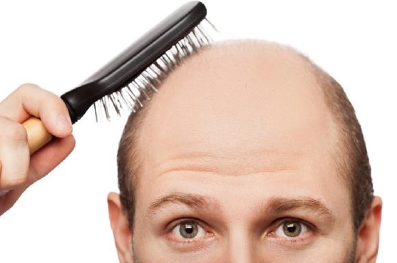 Saç dökülmesine karşı çözüm bulundu