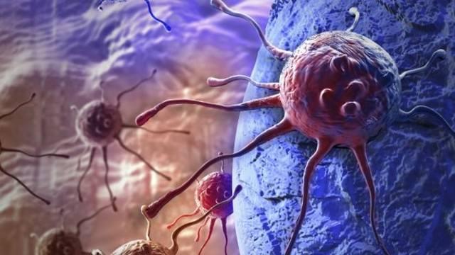 Uzmanlardan kansere karşı mucizevi karışım