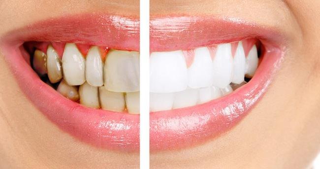 Ağız ve diş bakımında doğru bilinen 10 yanlış