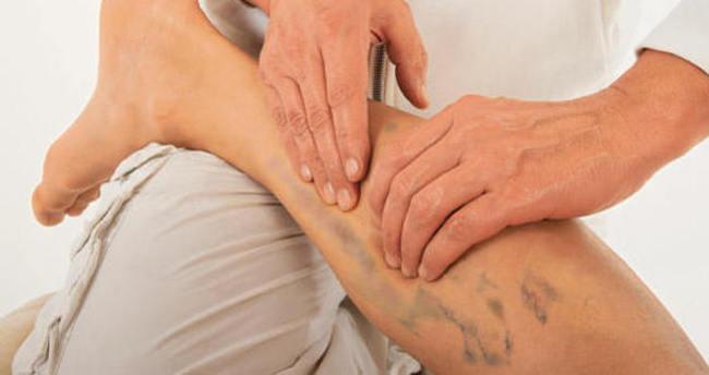 Bacaklardaki yaralar bakın neyin habercisi