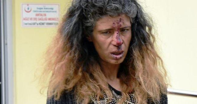 Kadını dövüp burnunu kırdılar