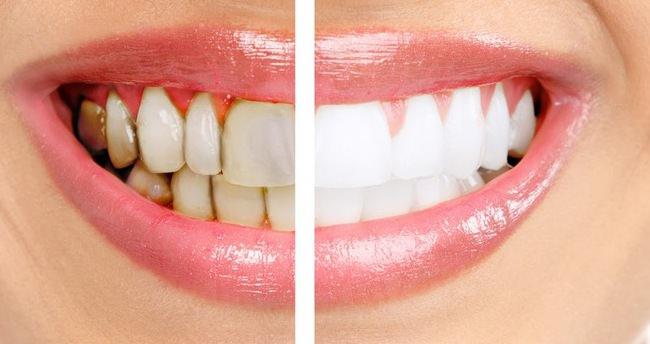 Bunları yedikten sonra hemen dişlerinizi fırçalayın