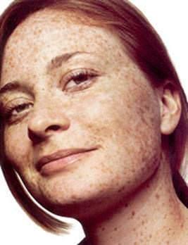 Önemli noktalardan biri cildin korunmasıdır ayrıca yaşlanma