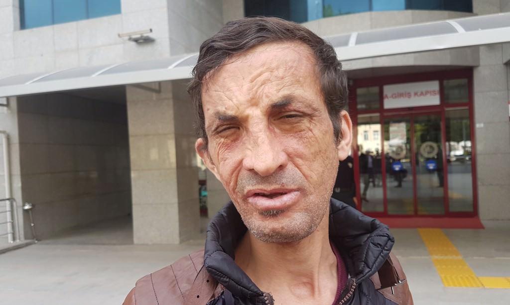 Türkiye'nin ilk yüz nakillisi Uğur Acar hakim karşısına çıktı