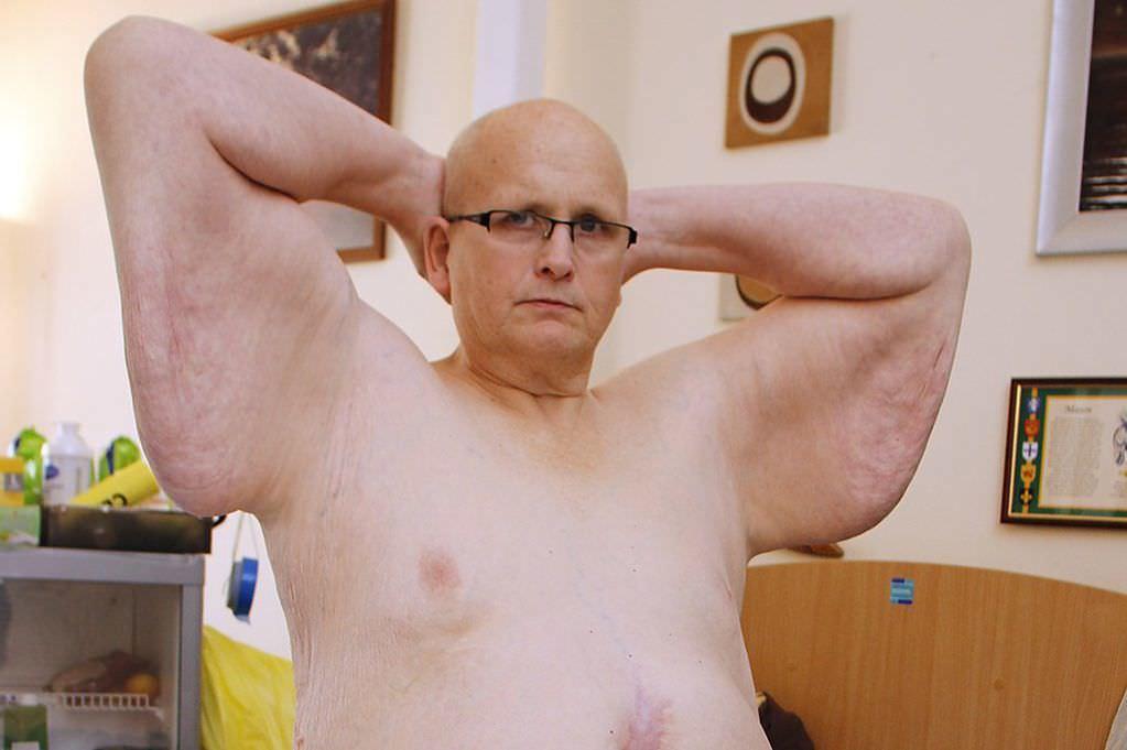 444 kiloluk adam imkansızı başardı