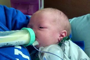 Burunsuz doğan bebeğin yaşam azmi