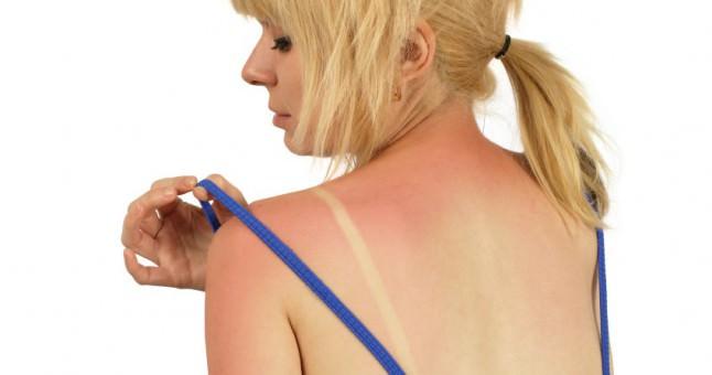 Güneş yanığına karşı doğal tedavi!