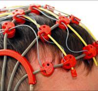 8658054778?96018929963 - Spor, epilepsi n�betini azalt�yor