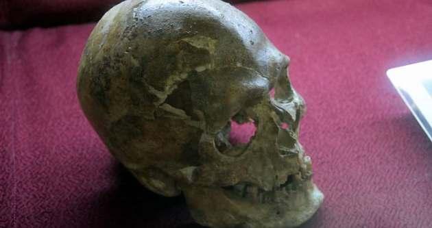 5 bin yıllık beyin ameliyatı