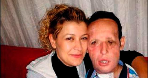 Yüz nakli yapılan Sert, evleniyor