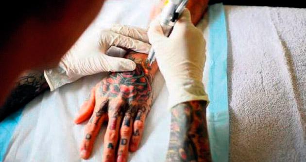 İstemediğiniz dövmelerden kurtulmak artık daha kolay!