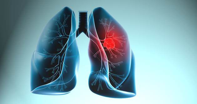 Akciğer kanserine davet çıkarmayın