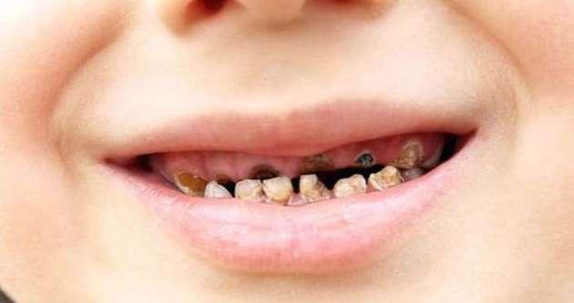 Bilinçsizlik diş çürütüyor