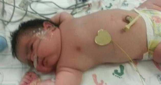 6.2 kilogram doğan bebek görenleri şaşırttı
