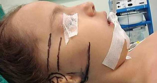 Türk doktor göğüs kafesinden kulak yaptı