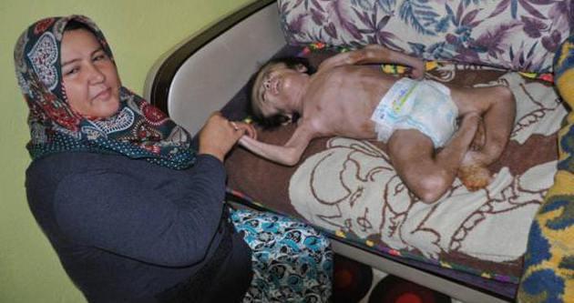 Hidrosefali hastası Emre'ye büyük şok