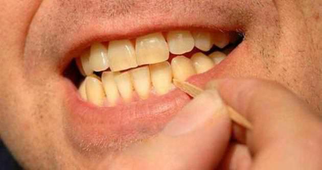 Kürdan diş çürüklerine neden oluyor