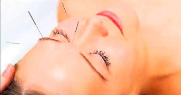 Akupunktur, gripte etkili mi?