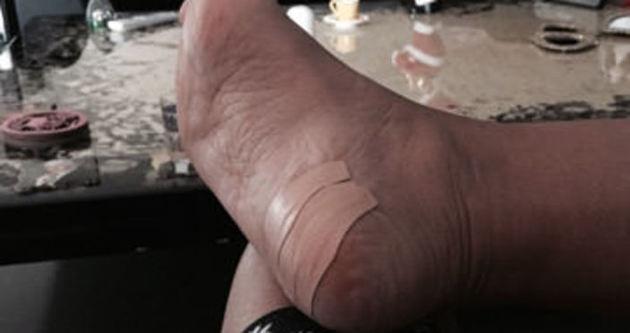Demet Akalın'ın ayağı sosyal medyayı salladı