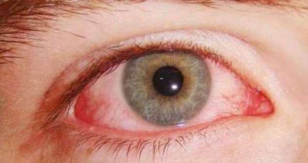 Adana'da göz enfeksiyonu salgını