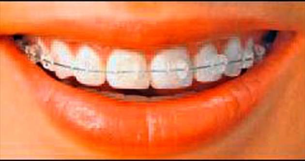 Ortodontik tedavinin yaşı yok