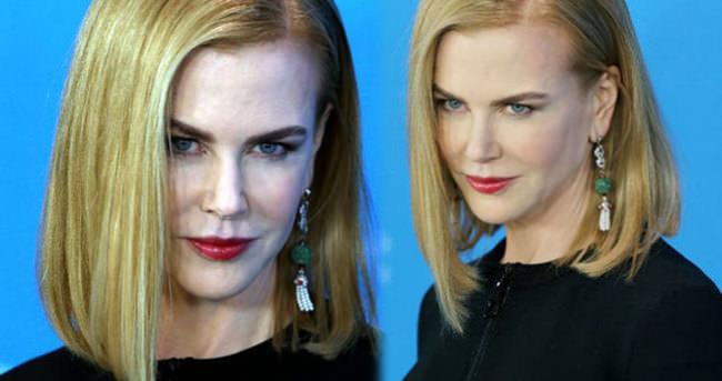Nicole Kidman da botoxlular kervanına katıldı