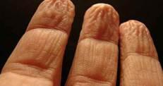 Parmakların suda buruşmasının gerçek nedeni)