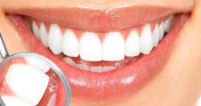 Dişlerde sıcak-soğuk hissiyatına dikkat!