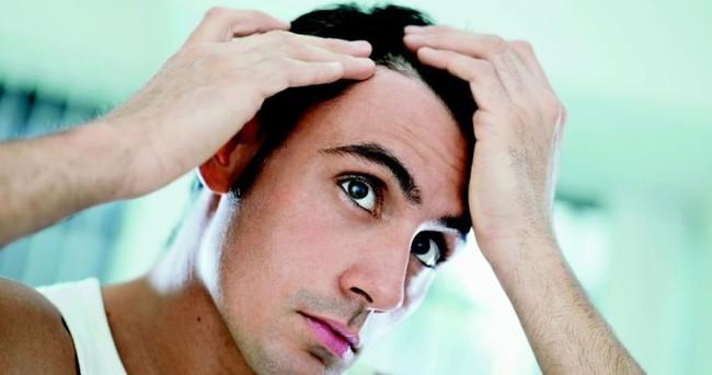 Saç dökülmesine hangi vitaminler iyi gelir?