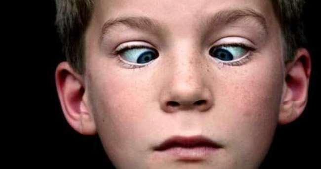 Çocuklarda şaşılık ihmale gelmez