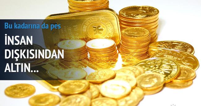 İnsan dışkısından milyonlarca dolarlık altın