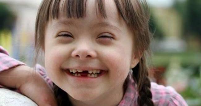 Her 88 çocuktan birinde otizm görülüyor