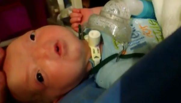 Burunsuz doğan bebek