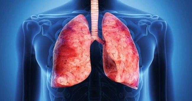 İleri evre akciğer kanserinde yaşam süresi arttı