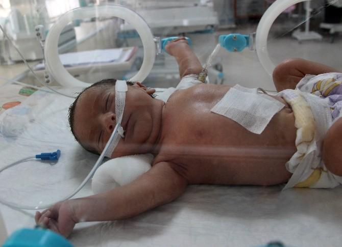 (Özel Haber) Anne Karnında Teşhis Bebeğin Hayatını Kurtardı