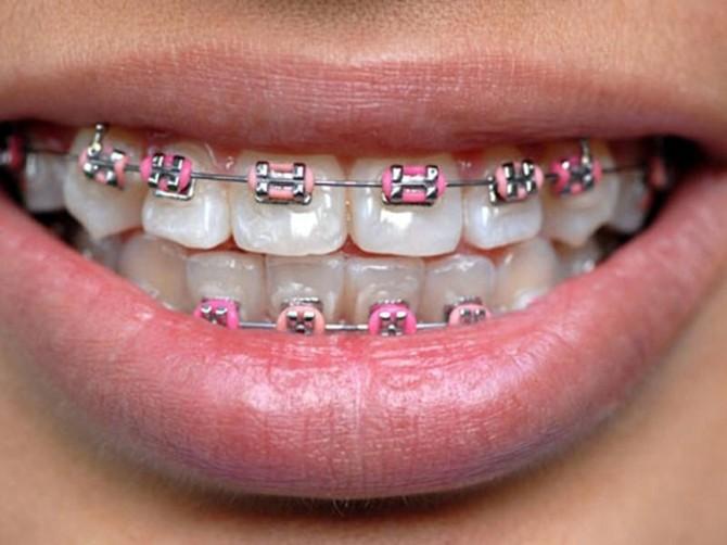 Estetik Kaygısı, Ortodonti Tedavisine Olan Talebi Arttırdı