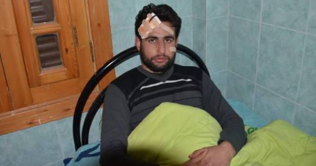 AA kameramanı Suriye'de roket saldırısında yaralandı