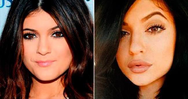 Kylie'nin patlak dudak modası