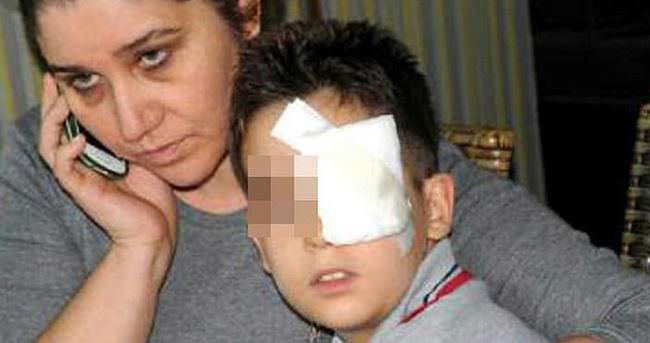 9 yaşındaki öğrencisinin kaşını patlattı