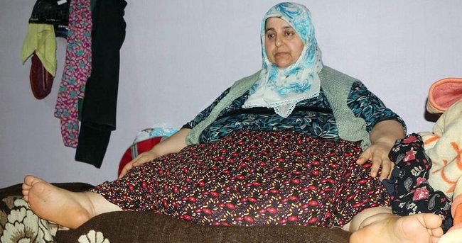 250 kiloluk kadın kalp krizinden öldü