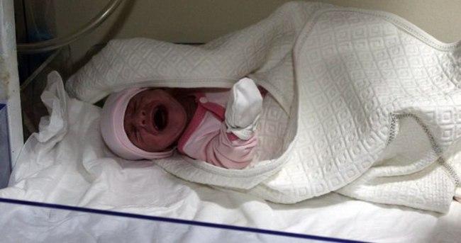 2 aylık bebeğin tüm organları ters!