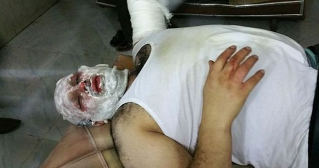 Suriye'de yaralanan AA muhabiri Türkiye'ye getirildi