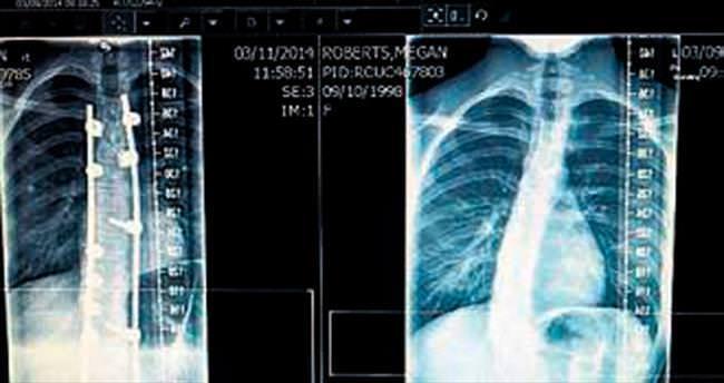 Metal çivilerle omurgası düzleştirildi