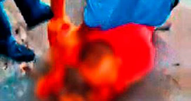Esnaf kavgasında polis bıçaklandı