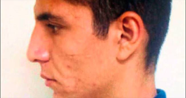 Hırsızı yüzündeki yara izi ele verdi