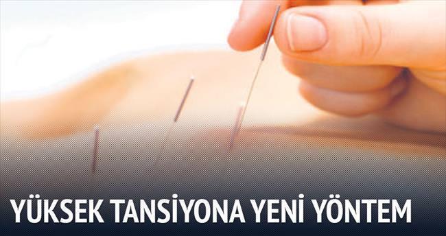 Yüksek tansiyona karşı akupunktur