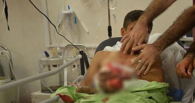 Bomba teröristin elinde patladı