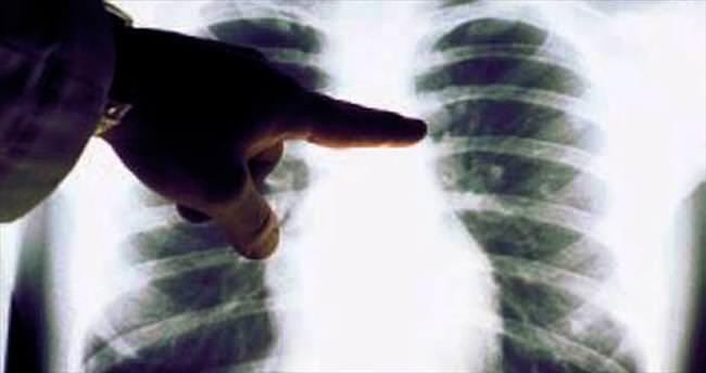 Sigara içmeyenler için akciğer kanseri riski değişmiyor