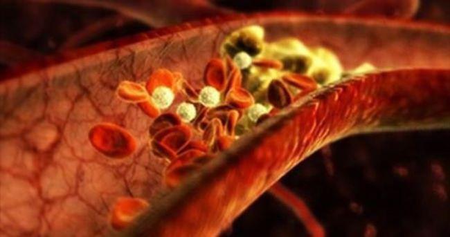 21. yüzyılda damar sertliği salgını bekleniyor